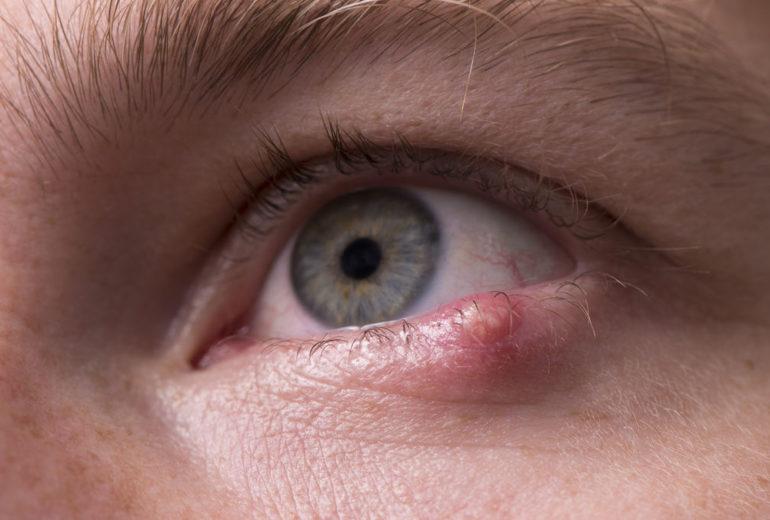 Terçol no olho: aprenda como tratar o problema e evitar novas infecções