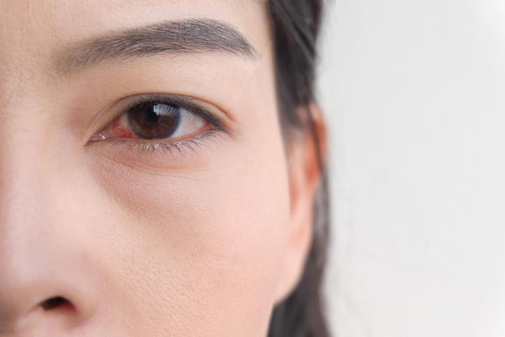 4 doenças da retina e suas causas: como se prevenir de forma eficiente? Leia este artigo!