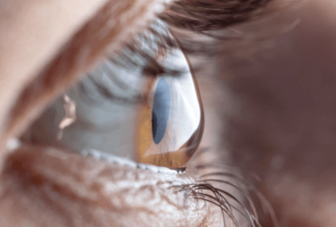Conheça melhor os sintomas e os tratamentos para o ceratocone